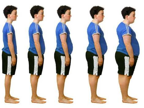 AwareMed.com obese1 The Richest Country in the World Suffering from Starvation and Obesity?