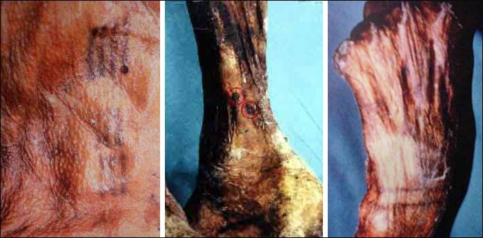 Marcas en el cuerpo de Ötzi