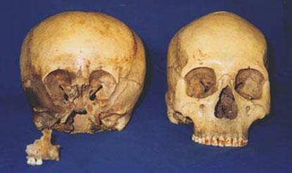 starchild skull / human skull