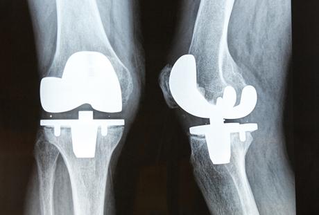 http://www.viewzone.com/usermontu-knee-replacement.jpg